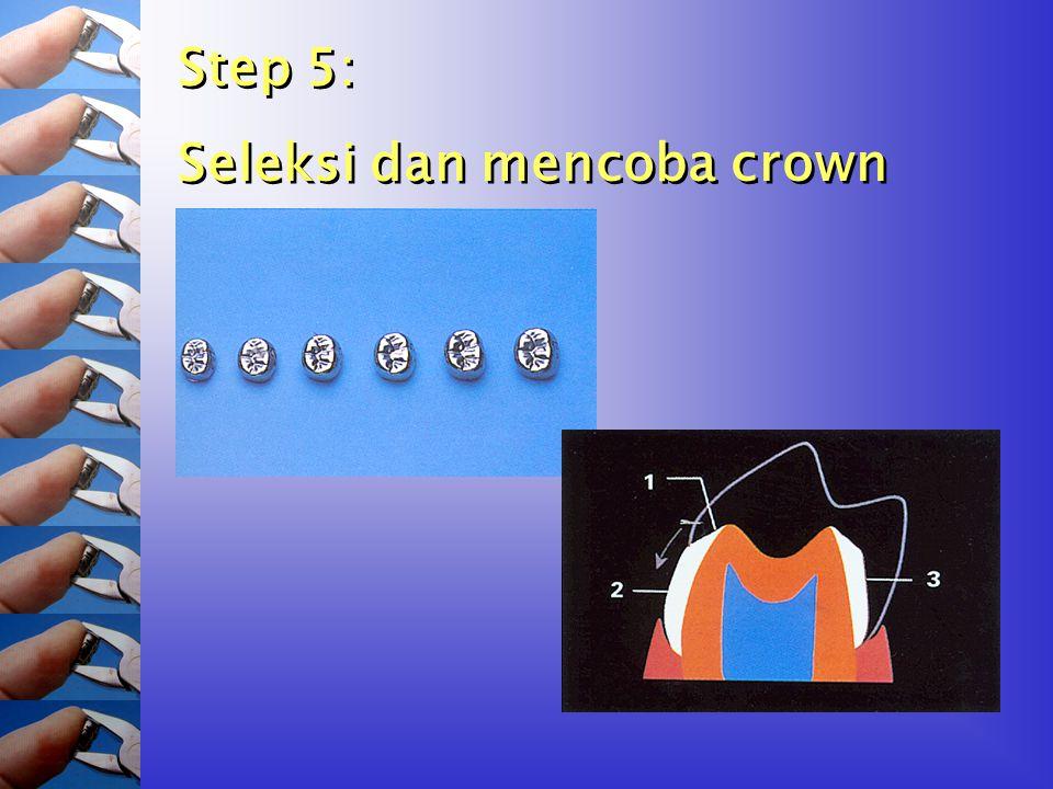 Step 5: Seleksi dan mencoba crown