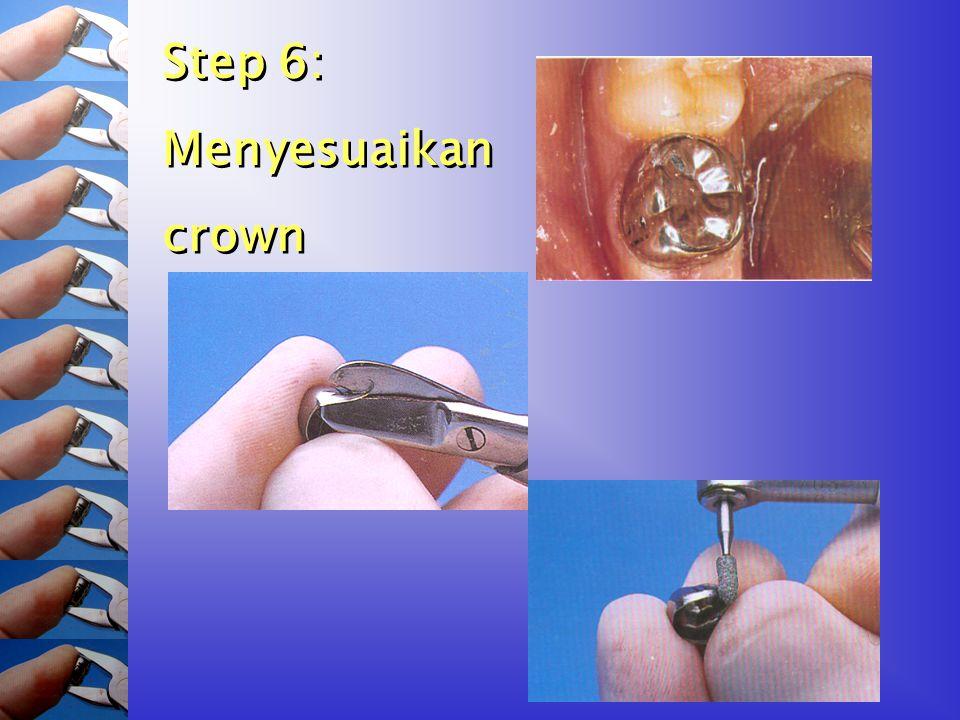 Step 6: Menyesuaikan crown