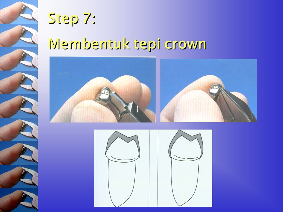 Step 7: Membentuk tepi crown