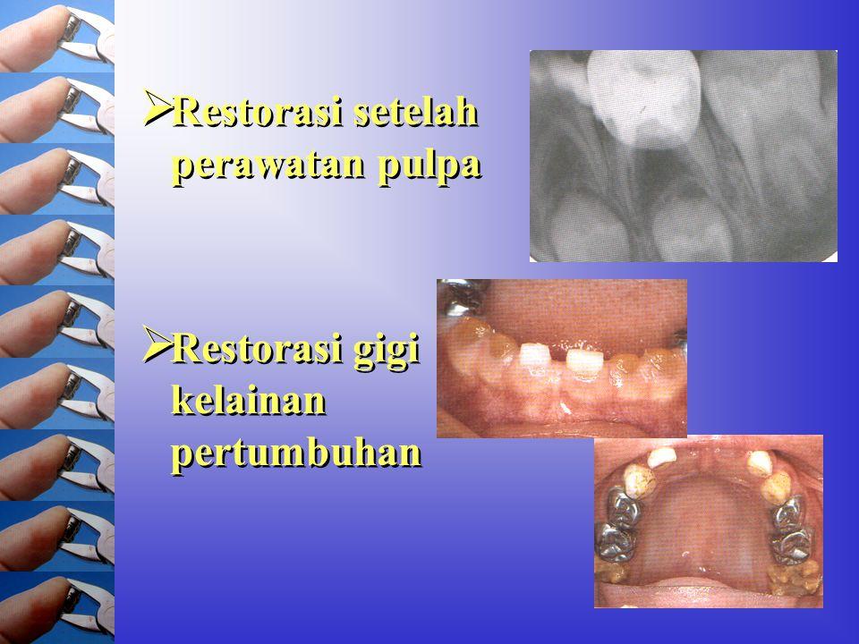 Restorasi setelah perawatan pulpa