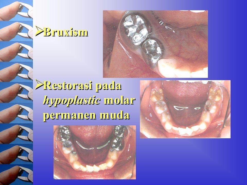 Bruxism Restorasi pada hypoplastic molar permanen muda