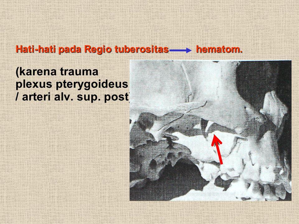 Hati-hati pada Regio tuberositas hematom