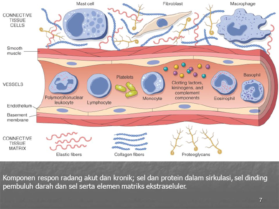 Komponen respon radang akut dan kronik; sel dan protein dalam sirkulasi, sel dinding pembuluh darah dan sel serta elemen matriks ekstraseluler.