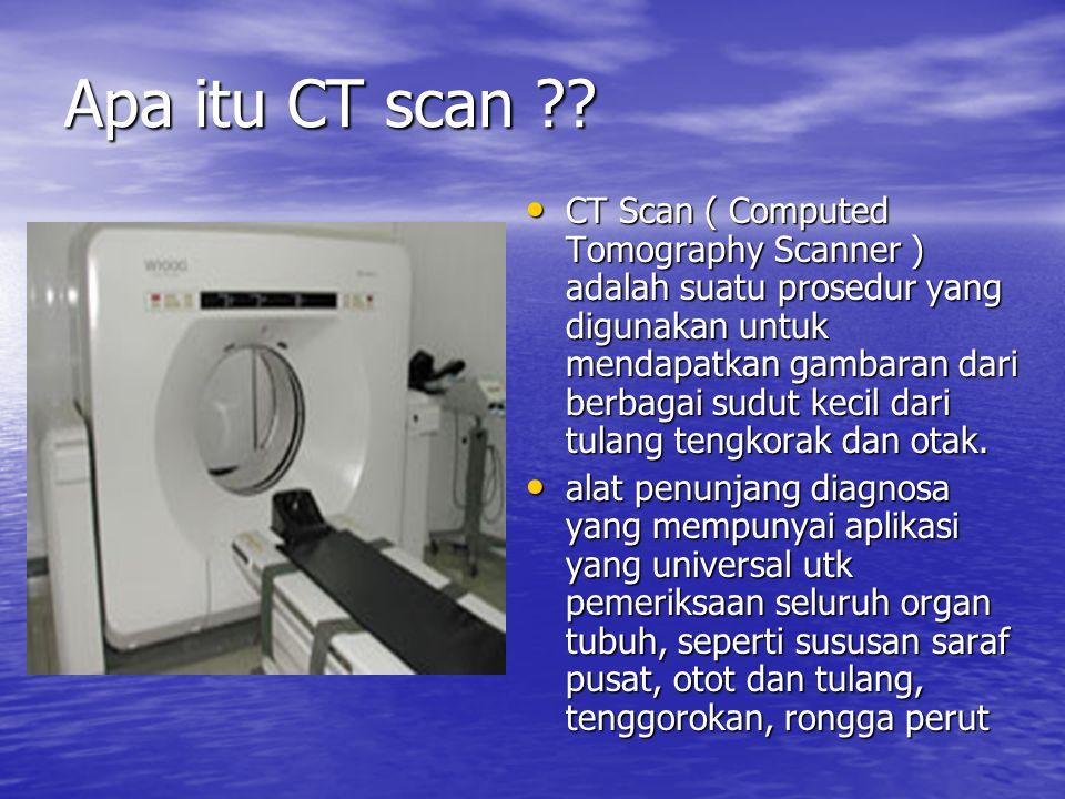 Apa itu CT scan