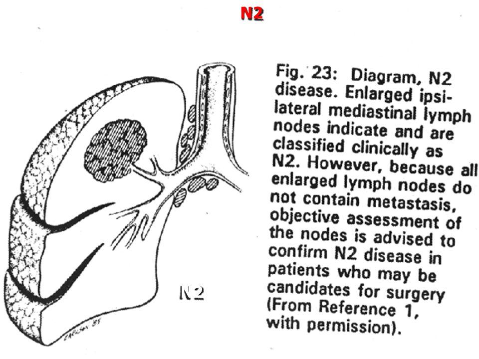 N2 N2