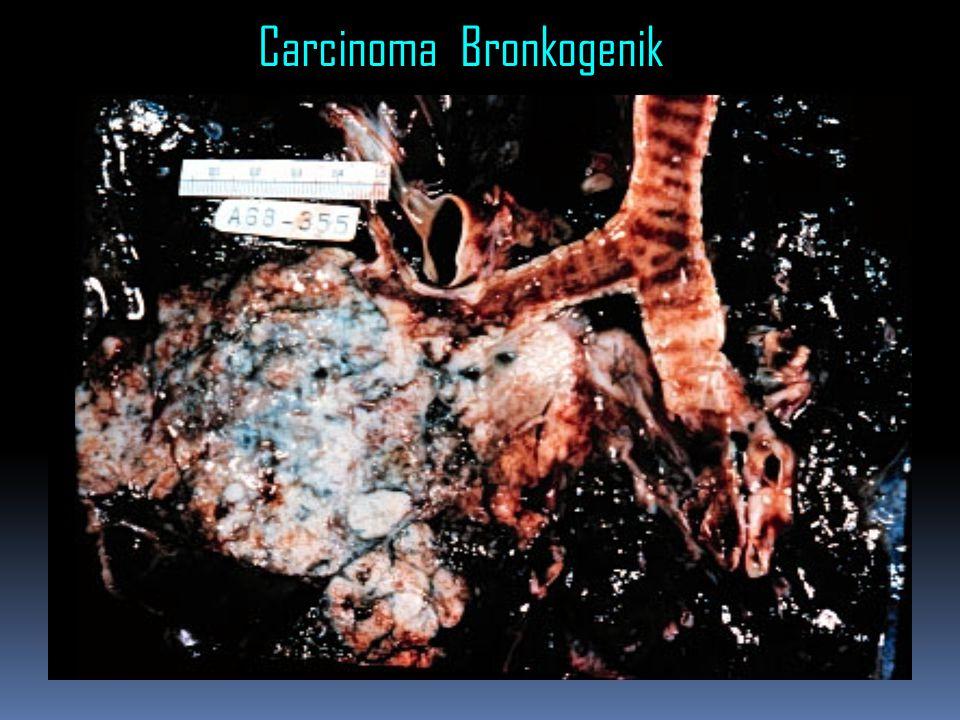 Carcinoma Bronkogenik