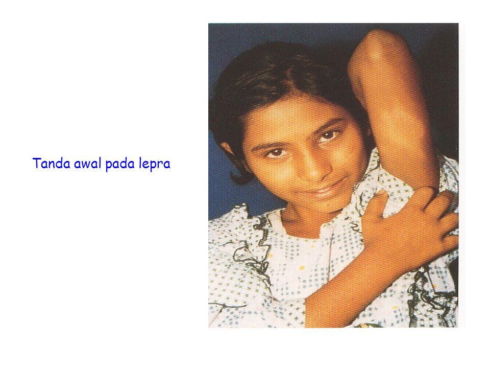 Tanda awal pada lepra