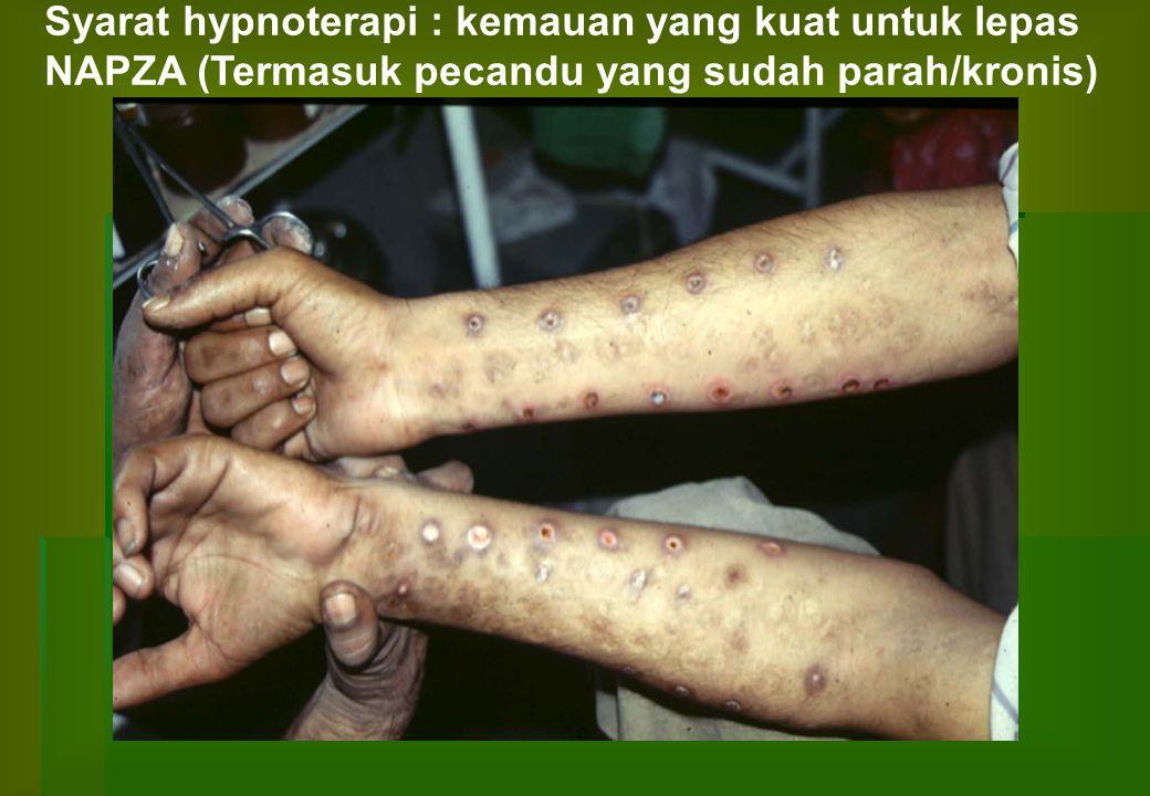 Syarat hypnoterapi : kemauan yang kuat untuk lepas