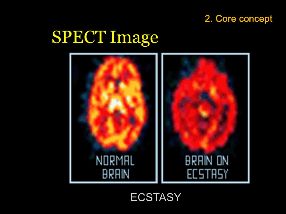 2. Core concept SPECT Image ECSTASY