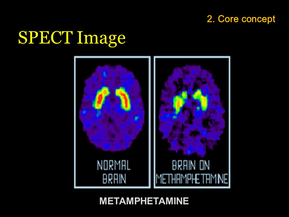 2. Core concept SPECT Image METAMPHETAMINE