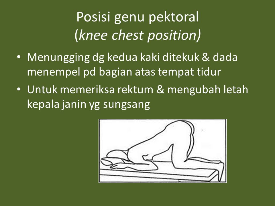 Posisi genu pektoral (knee chest position)