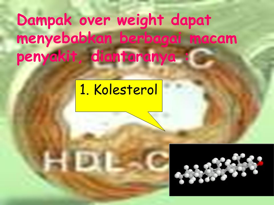 Dampak over weight dapat menyebabkan berbagai macam penyakit, diantaranya :