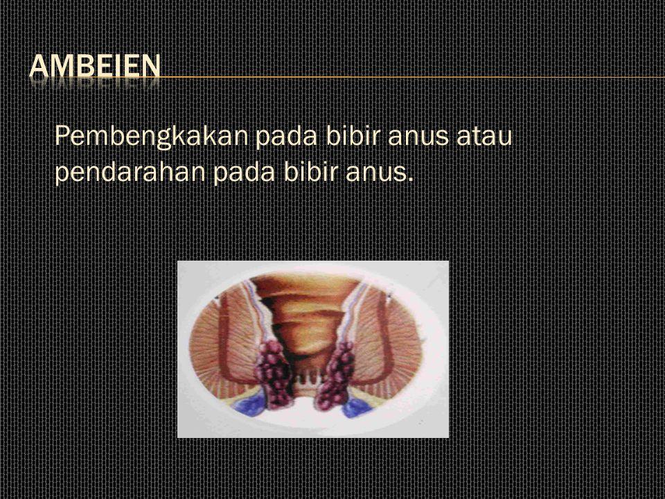 ambeien Pembengkakan pada bibir anus atau pendarahan pada bibir anus.