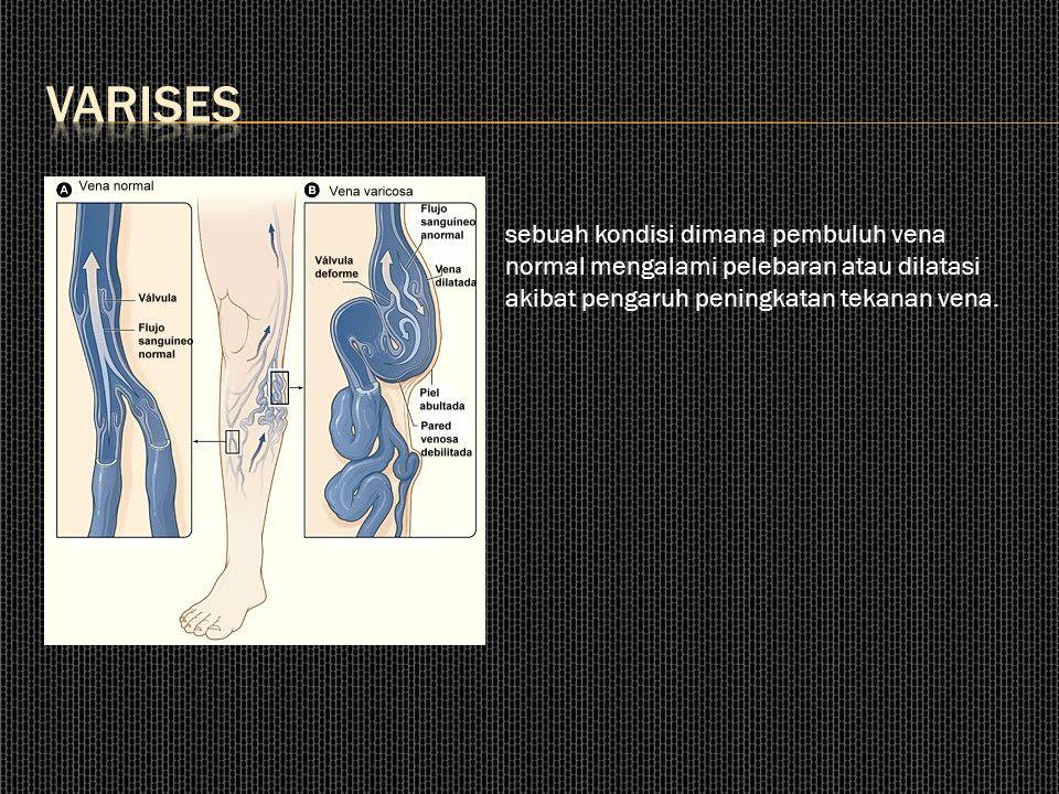 VARISES sebuah kondisi dimana pembuluh vena normal mengalami pelebaran atau dilatasi akibat pengaruh peningkatan tekanan vena.