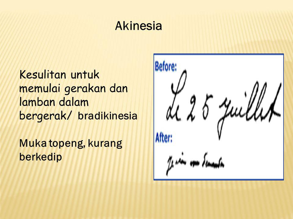 Akinesia Kesulitan untuk memulai gerakan dan lamban dalam bergerak/ bradikinesia.