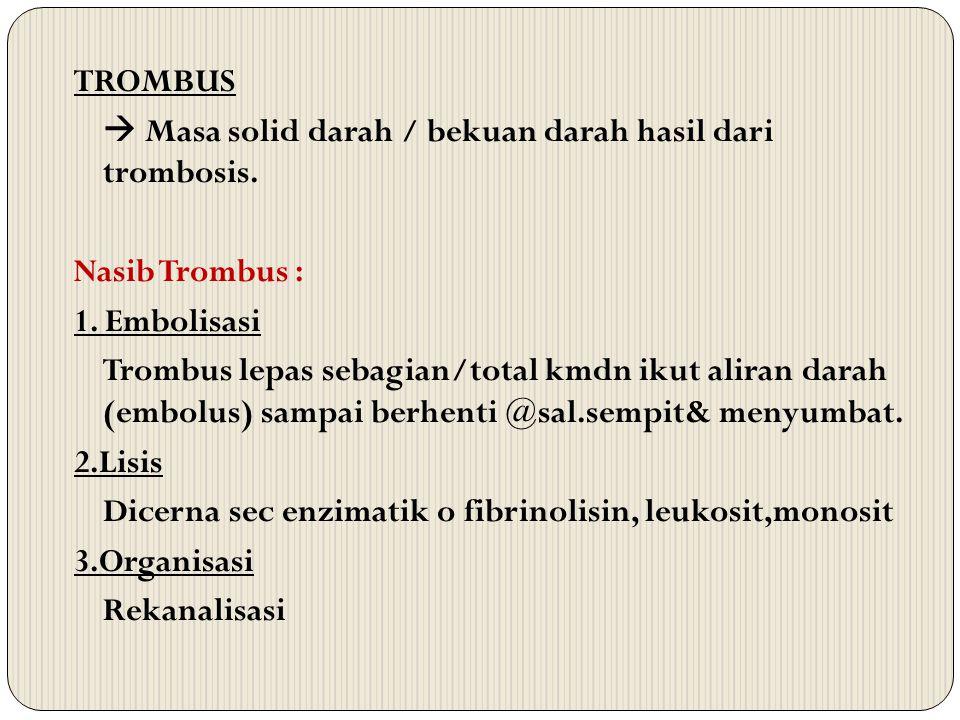 TROMBUS  Masa solid darah / bekuan darah hasil dari trombosis