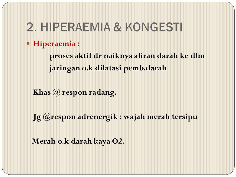 2. HIPERAEMIA & KONGESTI Hiperaemia :