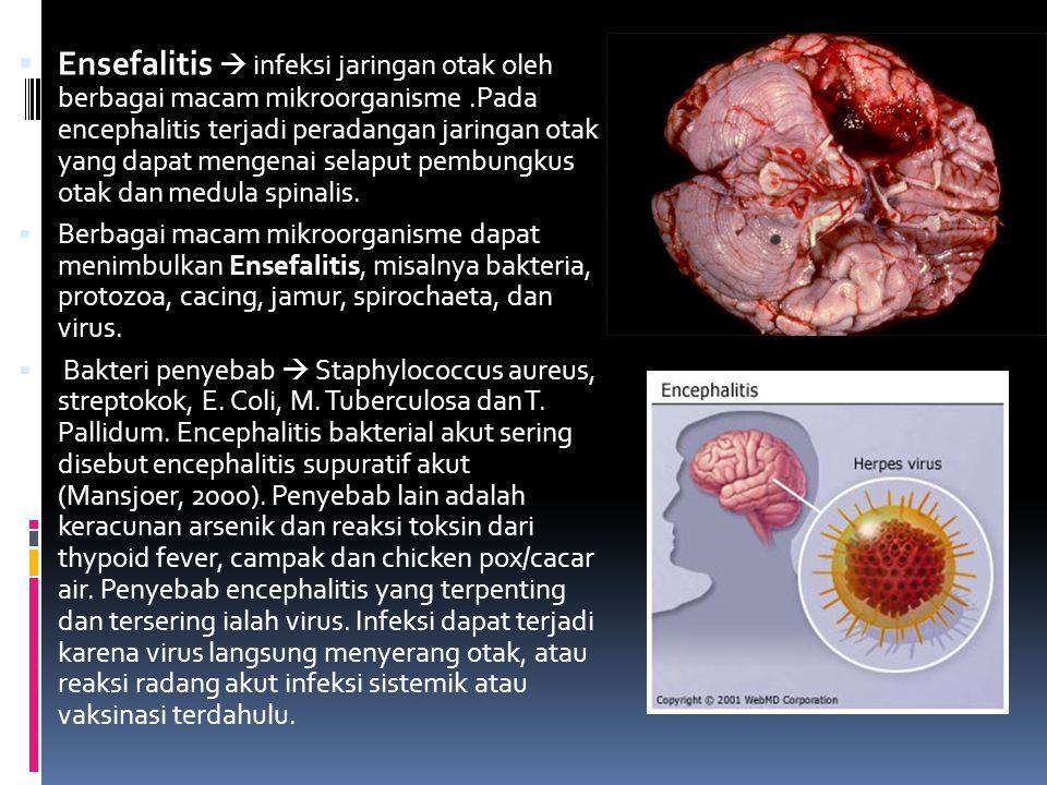 Ensefalitis  infeksi jaringan otak oleh berbagai macam mikroorganisme