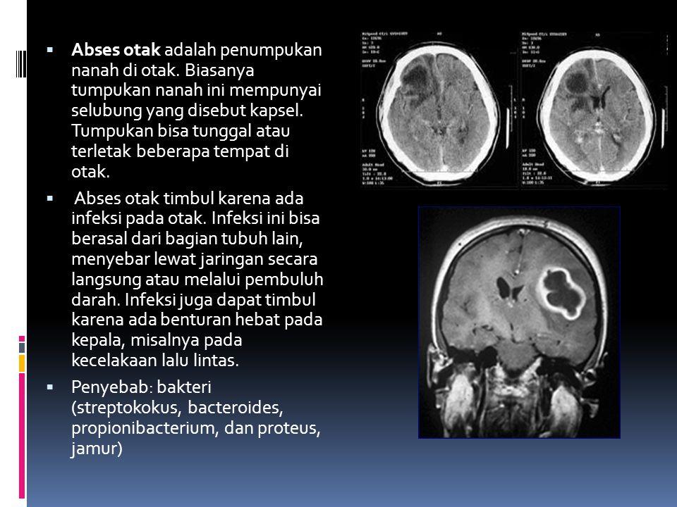 Abses otak adalah penumpukan nanah di otak