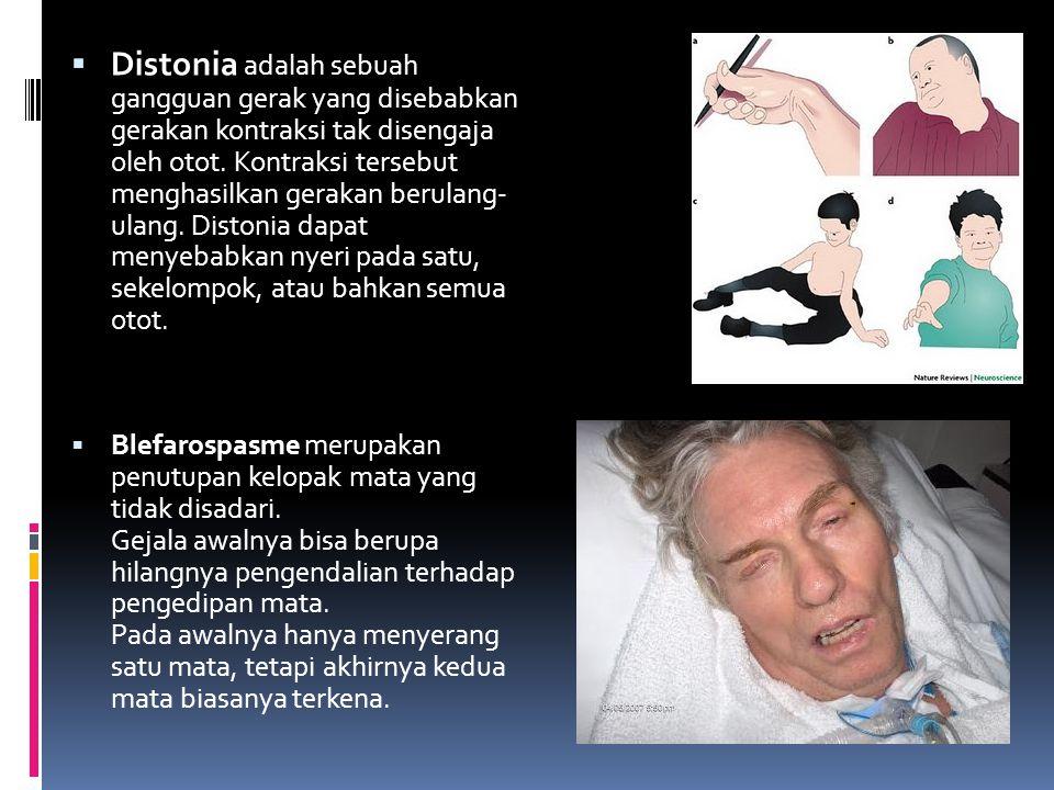 Distonia adalah sebuah gangguan gerak yang disebabkan gerakan kontraksi tak disengaja oleh otot. Kontraksi tersebut menghasilkan gerakan berulang- ulang. Distonia dapat menyebabkan nyeri pada satu, sekelompok, atau bahkan semua otot.