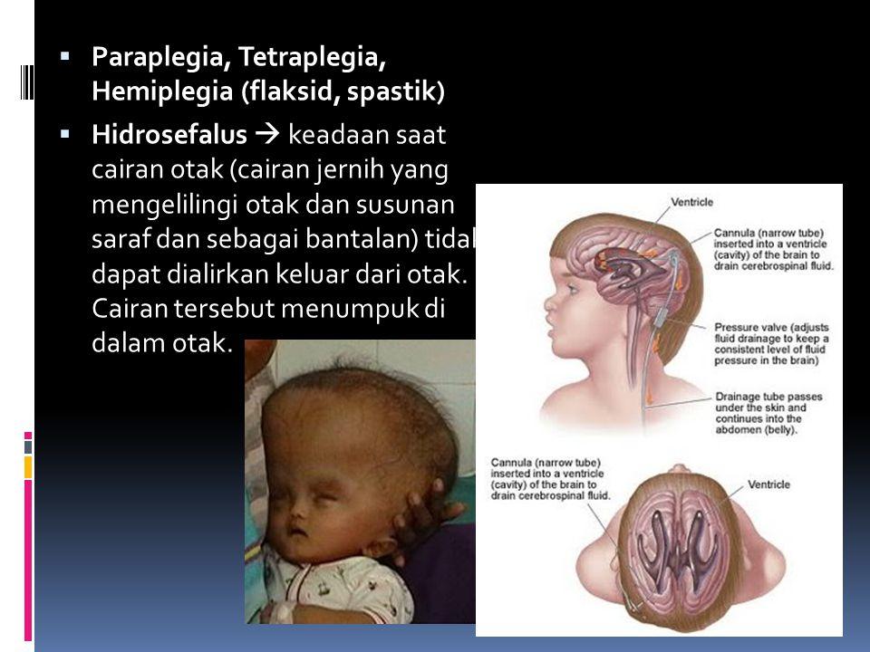 Paraplegia, Tetraplegia, Hemiplegia (flaksid, spastik)