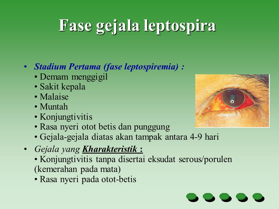 Fase gejala leptospira