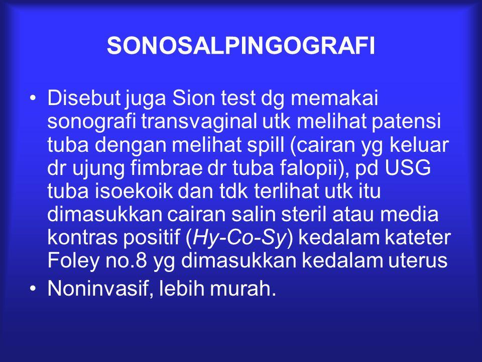 SONOSALPINGOGRAFI