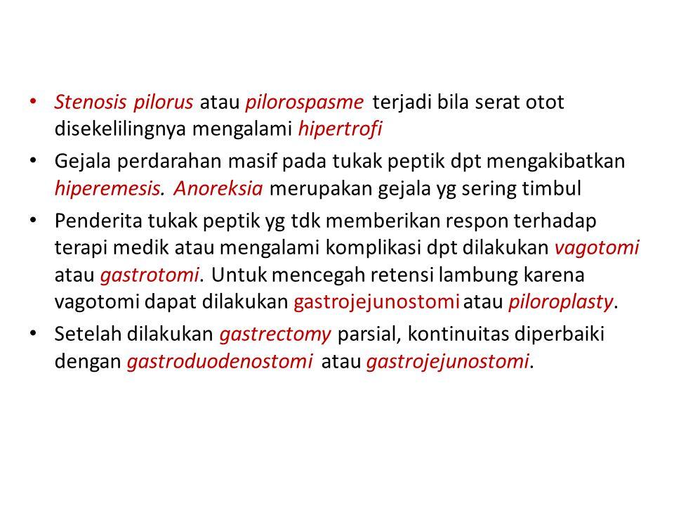Stenosis pilorus atau pilorospasme terjadi bila serat otot disekelilingnya mengalami hipertrofi