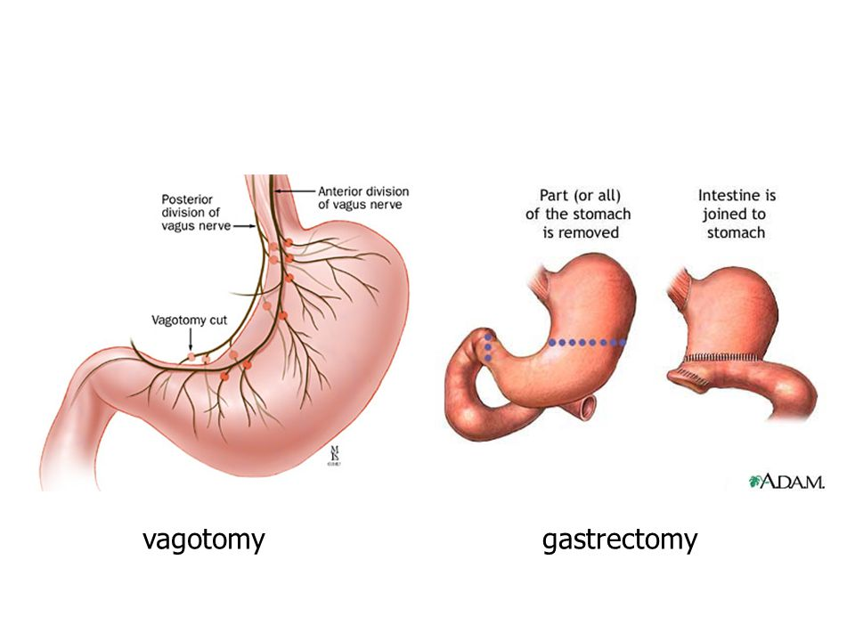 vagotomy gastrectomy