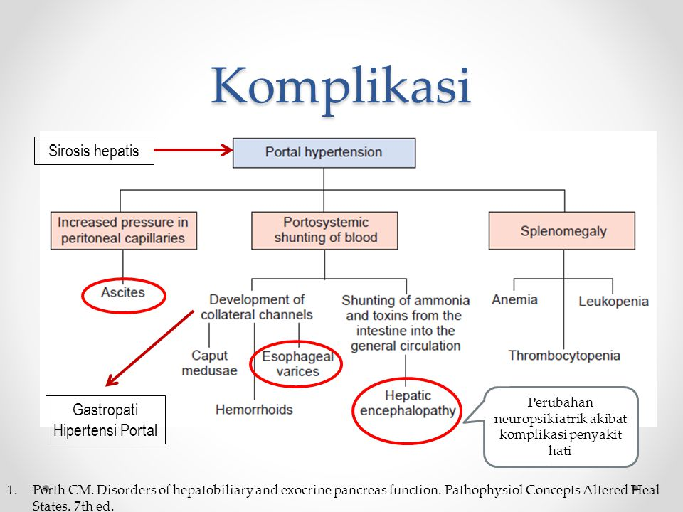 Komplikasi Sirosis hepatis Gastropati Hipertensi Portal