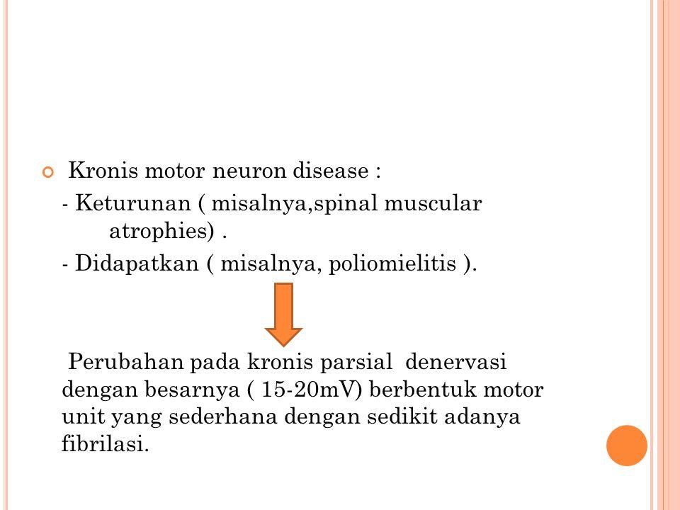 Kronis motor neuron disease :