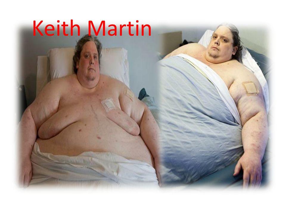 Keith Martin Keith Martin ini menimbang beratnya dan yang paling mengejutkan adalah ia memiliki berat 812 pounds (58-stone).