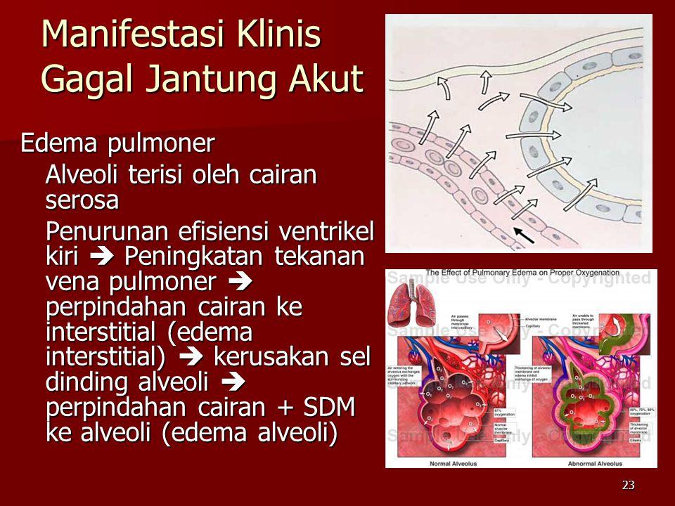 Manifestasi Klinis Gagal Jantung Akut