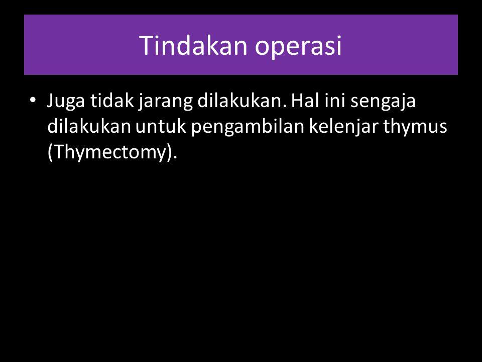 Tindakan operasi Juga tidak jarang dilakukan.