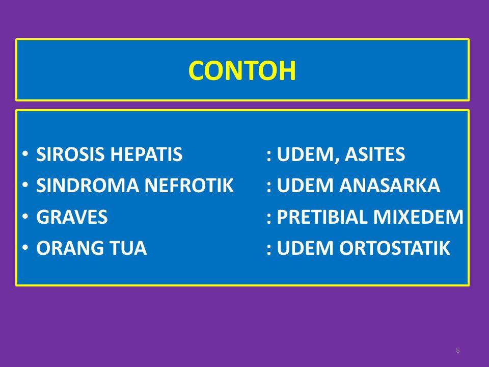 CONTOH SIROSIS HEPATIS : UDEM, ASITES