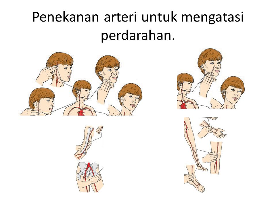 Penekanan arteri untuk mengatasi perdarahan.