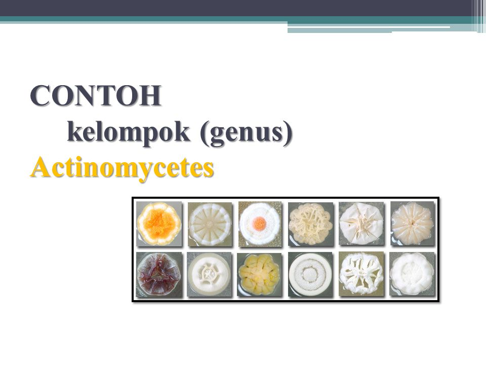 CONTOH kelompok (genus) Actinomycetes