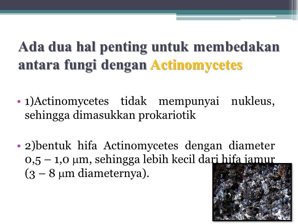 Ada dua hal penting untuk membedakan antara fungi dengan Actinomycetes