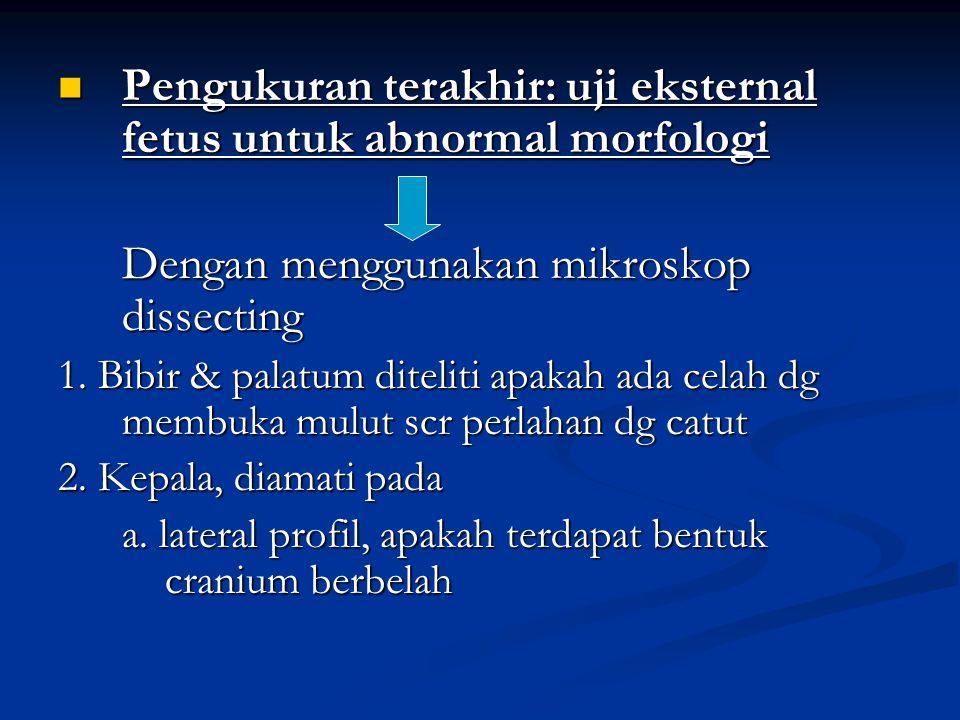 Pengukuran terakhir: uji eksternal fetus untuk abnormal morfologi