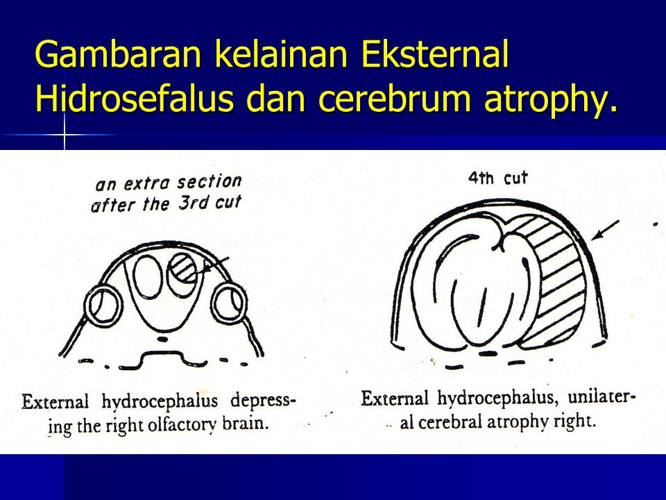 Gambaran kelainan Eksternal Hidrosefalus dan cerebrum atrophy.