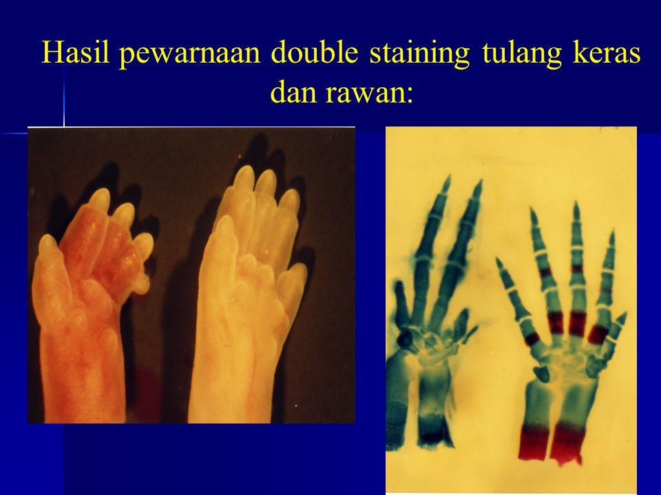 Hasil pewarnaan double staining tulang keras dan rawan: