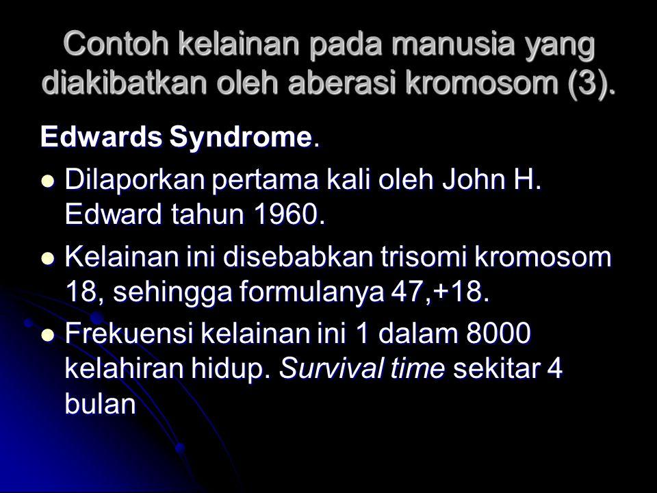 Contoh kelainan pada manusia yang diakibatkan oleh aberasi kromosom (3).