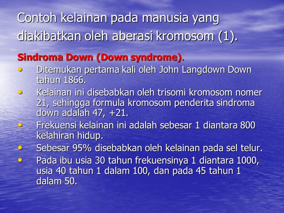 Contoh kelainan pada manusia yang diakibatkan oleh aberasi kromosom (1).