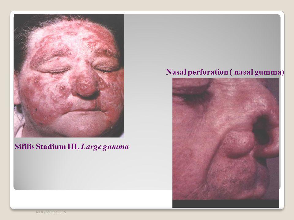 Nasal perforation ( nasal gumma)