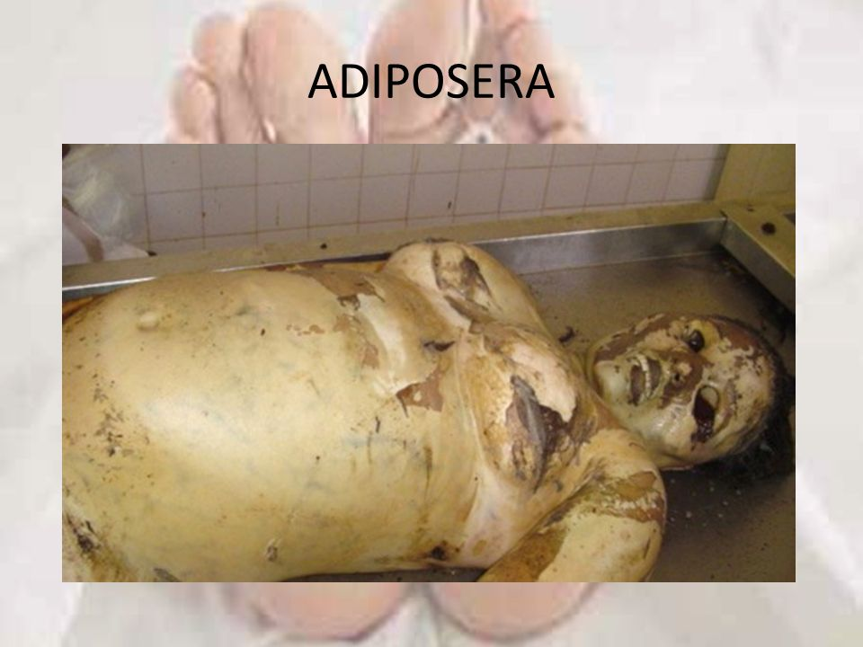 ADIPOSERA
