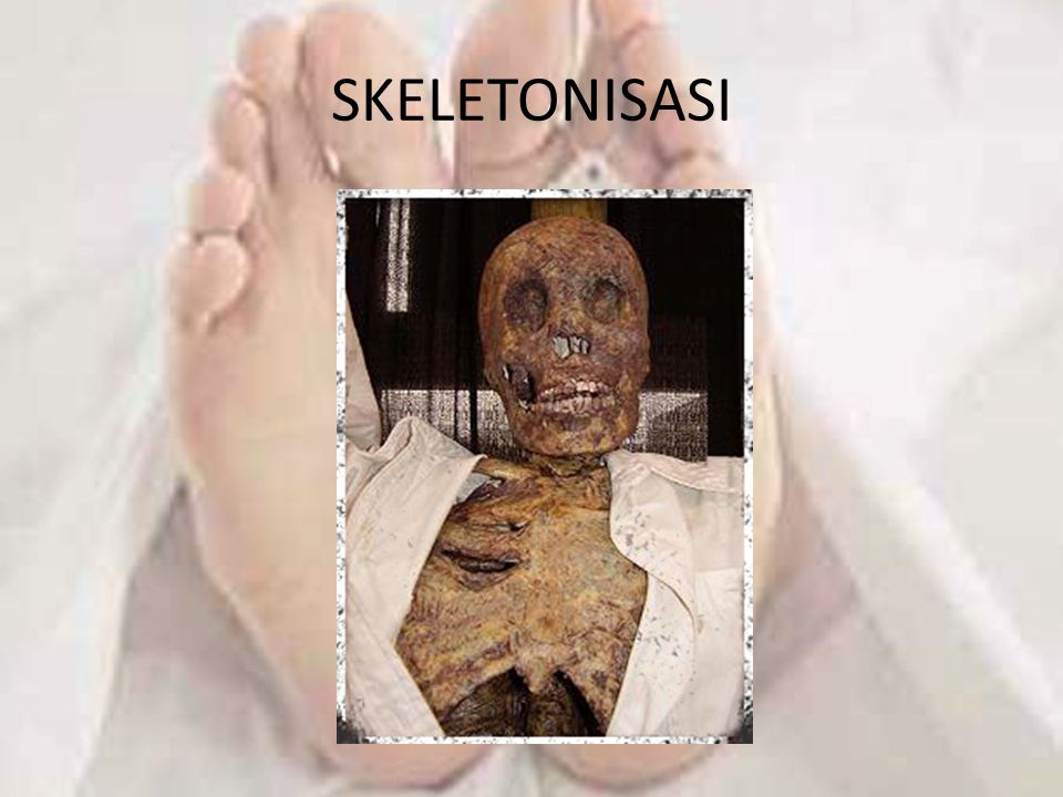 SKELETONISASI