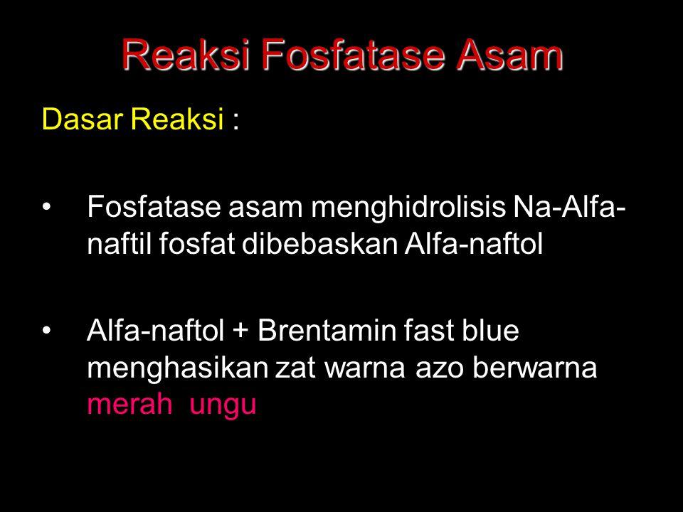 Reaksi Fosfatase Asam Dasar Reaksi :