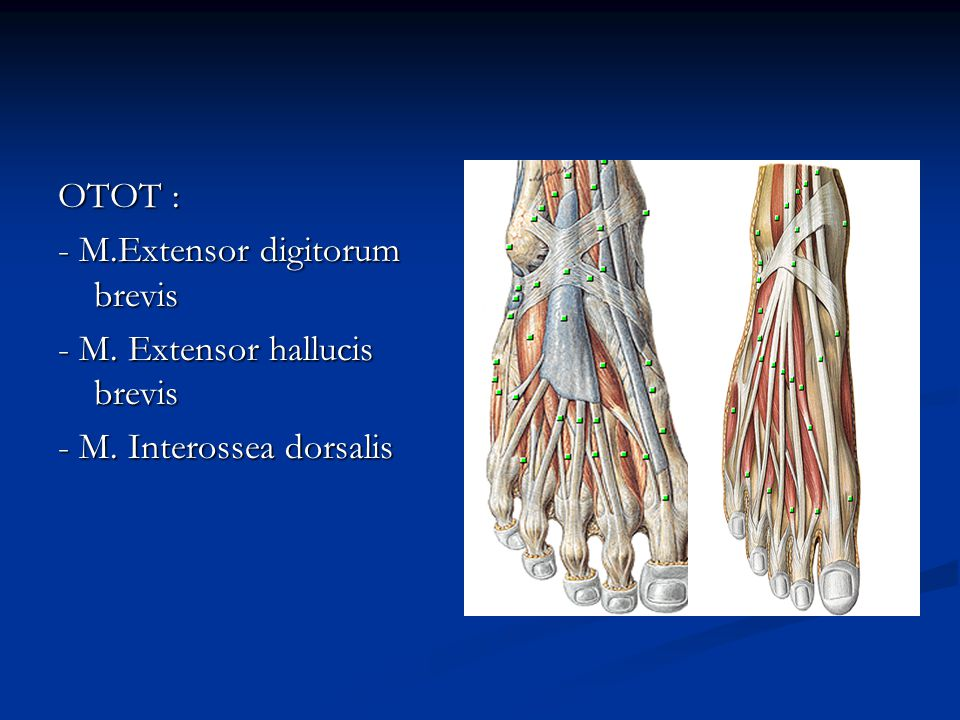 OTOT : - M.Extensor digitorum brevis - M. Extensor hallucis brevis - M. Interossea dorsalis