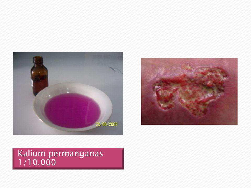 Kalium permanganas 1/10.000