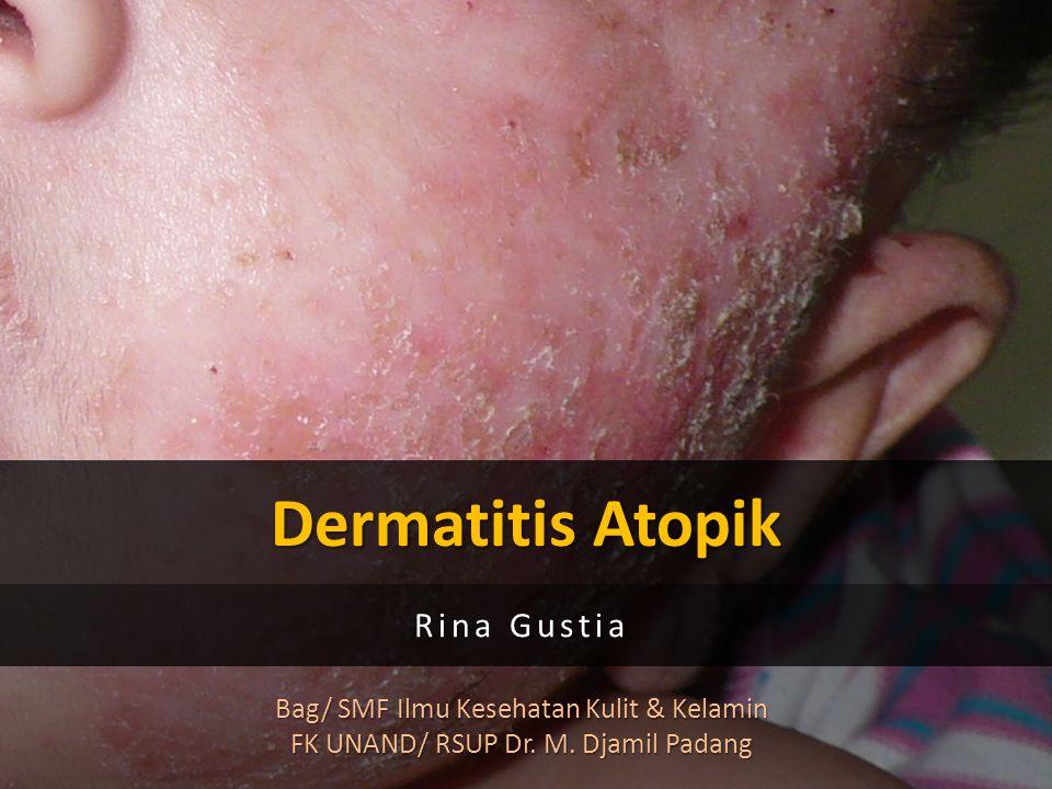 Dermatitis Atopik Rina Gustia Bag/ SMF Ilmu Kesehatan Kulit & Kelamin